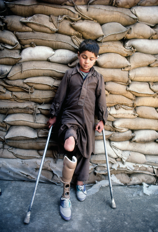 Nine-year-old Wazir Hammond rests against a wall of sandbags that protect a hospital in Kabul, Afghanistan. [PHOTO: ROBERT SEMENIUK]