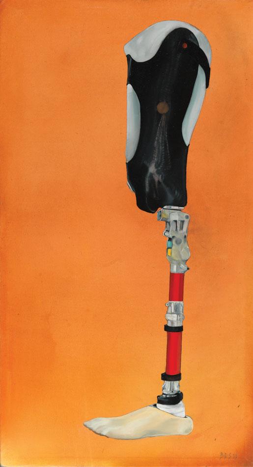 Sgt. Nielsen's leg. [PHOTO: BRUCE STEWART]