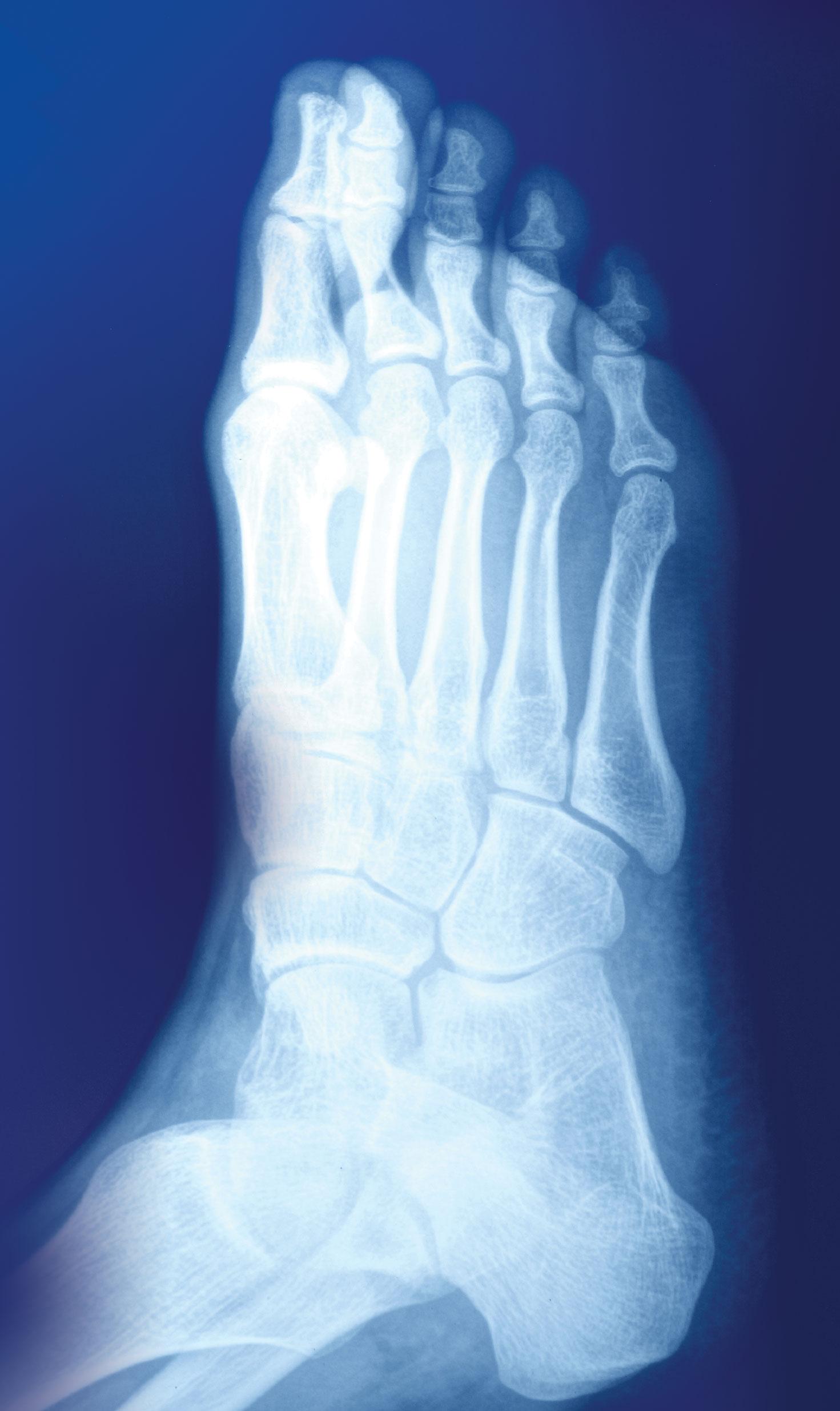 Preventing broken bones